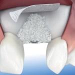 rigenerazione-ossea
